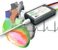 ЭКГ - скрининг кардиоанализатор КАРДИОВИЗОР-6С