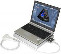 Аппарат УЗИ LogicScan 64