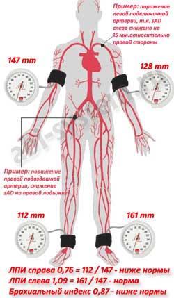снижен лодыжечно-плечевой индекс