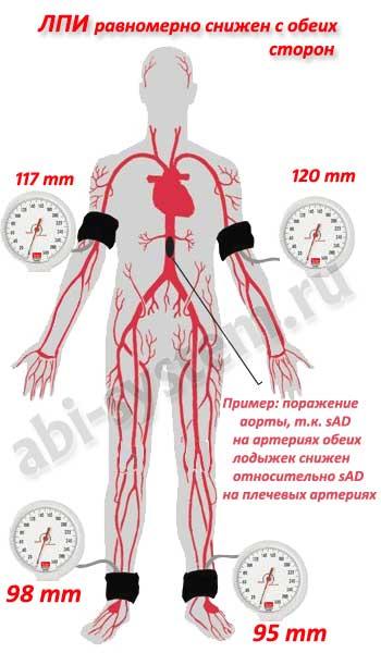 лодыжечно-плечевой индекс