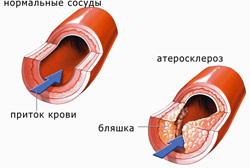 диагностика атеросклероза
