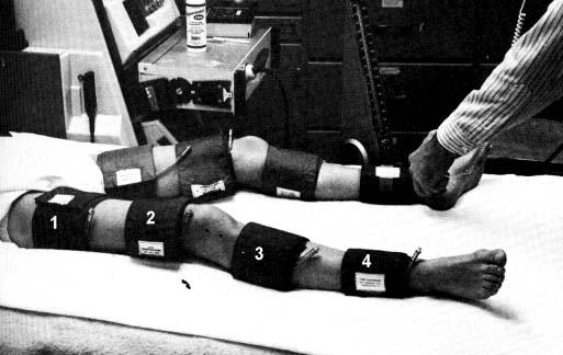 допплерография нижних конечностей