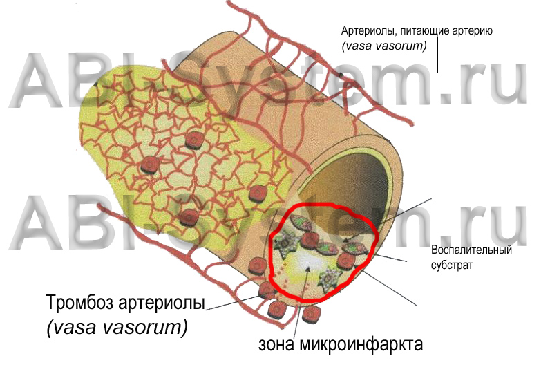 Biosite.ru Тромбоз vasa vasorum