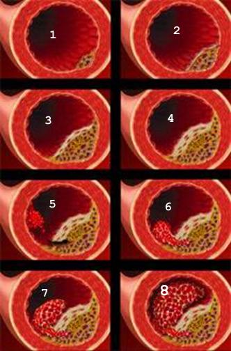 Образование атеросклеротической бляшки и исходом в тромбоз