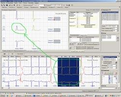 Холтеровское мониторирование, Анализ сегмента ST