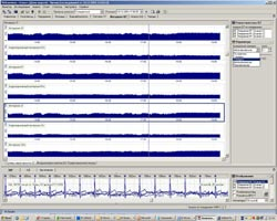 Суточное мониторирование ЭКГ