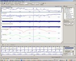 Электрокардиограф